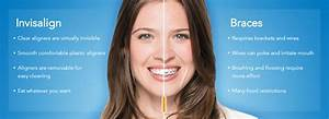Align Dentistry |Invisalign Treatment Sydney | Invisalign Cost