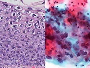 Dysplasia Of Cervixinteractive Health