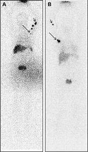 Lymphoscintigraphy  Different Distributions Of Lymph Nodes