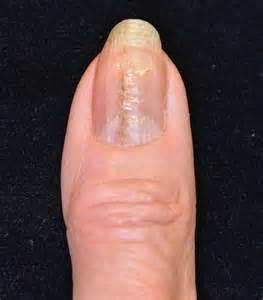 subungual melanoma nail bed quotes