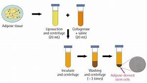 Schematic Procedure Showing Isolation Of Adipose