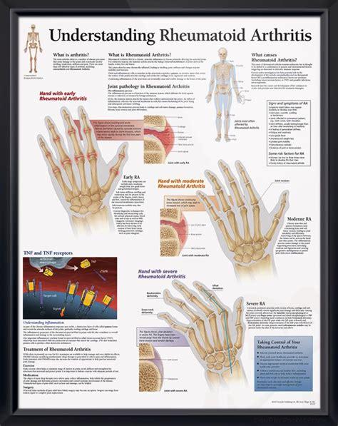 understanding rheumatoid arthritis chart  arthritis