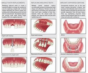 Dental Clinic in Chennai Madurai Tamilnadu India   Dentist ...