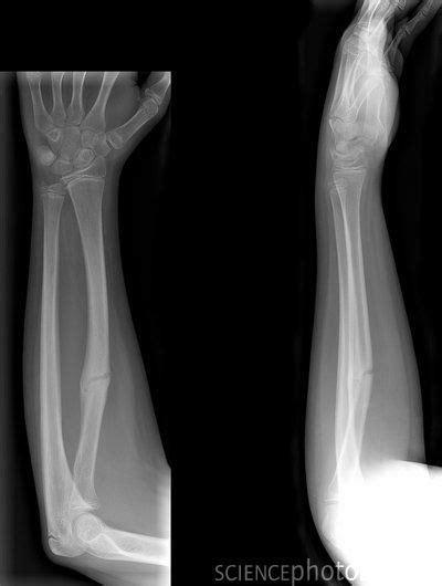 Broken Bone : Right Arm 3 fractures - check | Broken bone