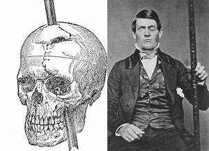 Franklin And Phineas Gage  U2013 Nw Noggin  Neuroscience