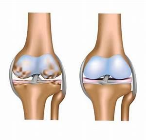 Грибок на ногах лечение хозяйственным мылом отзывы