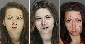Drug addict's shocking decline: Horrific effects of ...