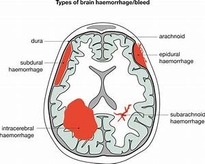 Brain Haemorrhage And Medical Negligence