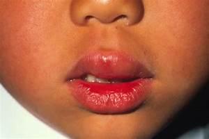 plexus Allergic Skin Reaction | A Online health magazine ...