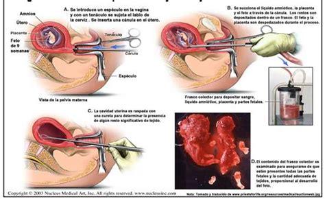 Cytotec 16 Weeks Pregnant No Importa La Distancia El Aborto