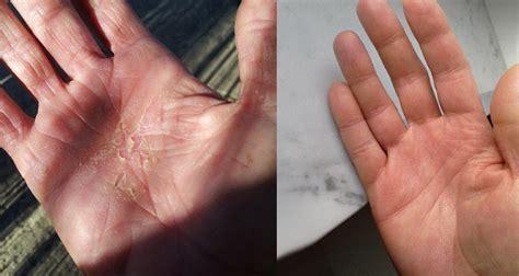 Dyshidrotic Eczema Home Remedies by Alternative Remedy Mind Home