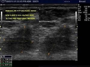 Histopathological Specimen Of Ultrasound