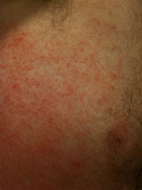Viral Exanthem Pictures Pictures Photos