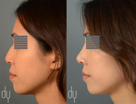 asian rhinoplasty asian nose jobs beverly hills facial