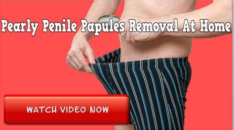 Pearly Penile Papules Removal At Home Everything Online