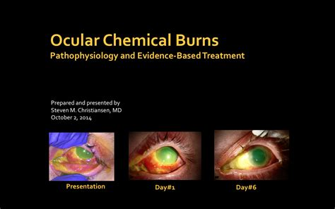 Ocular Chemical Burns - Pathophysiology and Evidence-Based ...