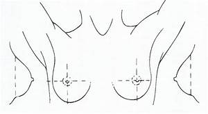 Breast Pain  Mastalgia   Assessing Breast Pain