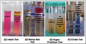 Imvic Test Results Of Vibrio Nereis And Vibrio Harveyi