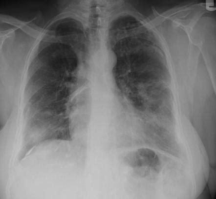 cryptococcosis pulmonary image radiopaediaorg