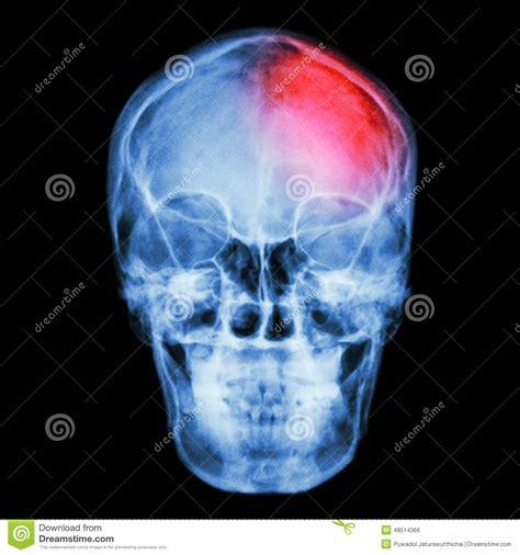 Linkerkant hoofdpijn