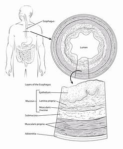 What Is Cancer Of The Esophagus