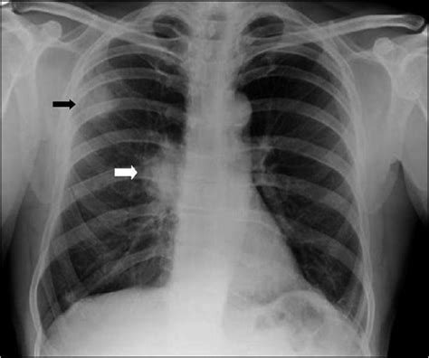 chambre implantable complications oncology lung tumors