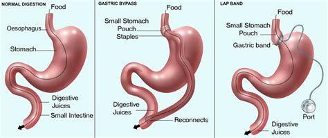 Weight Loss Surgery Cost Guide