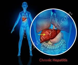 Chronic Hepatit... Hepatitis