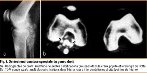 tumeurs synoviales du genou revue medicale suisse