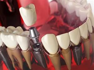 Rage De Dents Que Faire : abc s dentaire sous une couronne que faire medisite ~ Maxctalentgroup.com Avis de Voitures