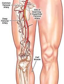 Right Femoral Artery Blockage