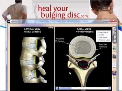 bulging disc 4 and 5
