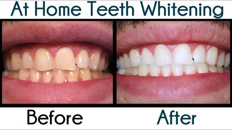 home teeth whitening smile brilliant  impressions
