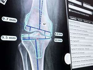 planning total knee replacement surgery with traumacad With orthopedic templating software