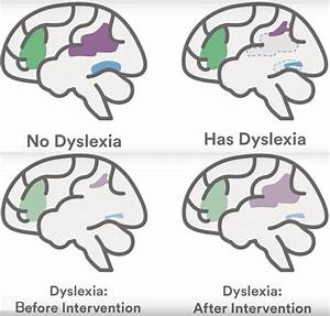 Reading, Dyslexia and Brain Plasticity | | High ...