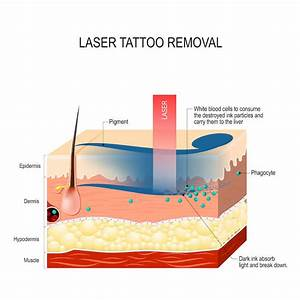Laser Tattoo Removal Skin Diagram  U2013 Apax Medical