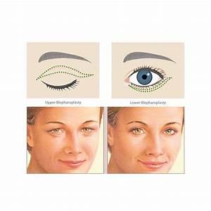 Eyelid Surgery Blepharoplasty Calgary Alberta Ab