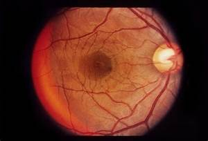 Bilateral Serous Detachments - Retina Image Bank
