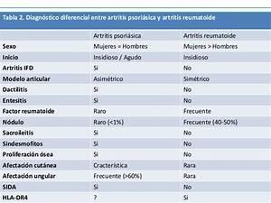 factor reumatoide alto tratamiento