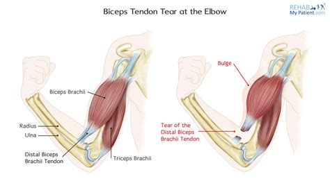 Check out our hands forearm tendon selection for the very best in unique or custom, handmade pieces from our shops. Biceps Tendon Tear at the Elbow | Rehab My Patient