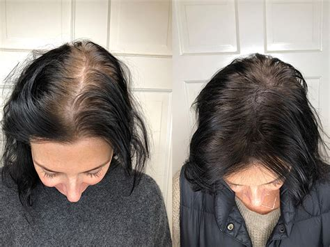 Scalp Micropigmentation: Benefits, Side Effects, Before