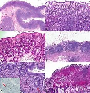 A  Scanning View Of Diverticular Disease U2013associated