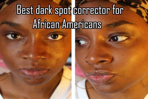dark spot corrector  african americans head