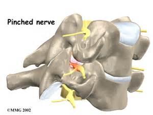 Cervical Radiculopathy - eOrthopod.com Cervical Radiculopathy