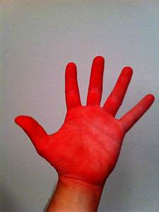 Image Gallery red hand