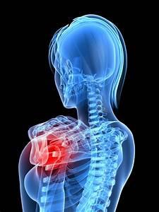 The Rotator Cuff : Injury and treatment | Legitmassage.com