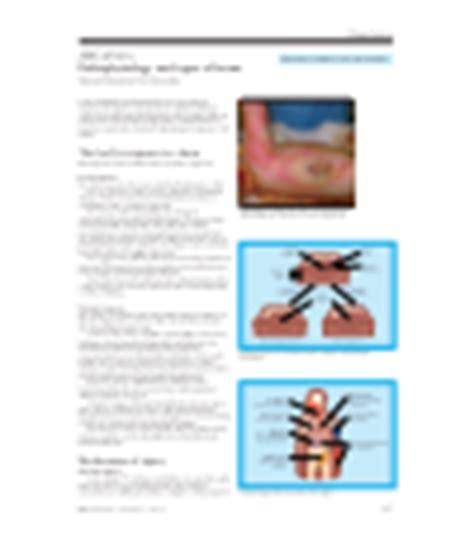 (PDF) ABC of burns: Pathophysiology and types of burns