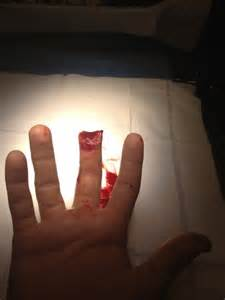 Cut On Tip of Finger Chopped Off