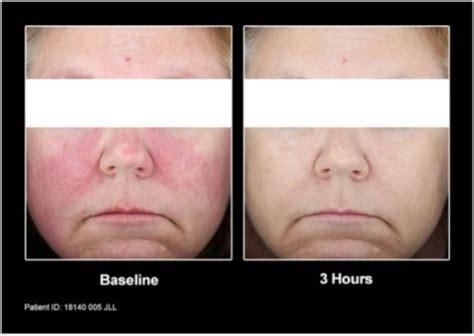 class treatment     facial