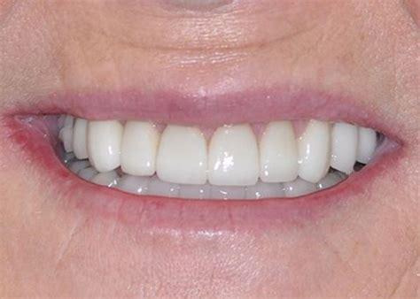 Dentist Lake Jackson Bell Dental